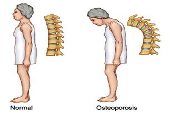 rupe articulațiile cu osteochondroza